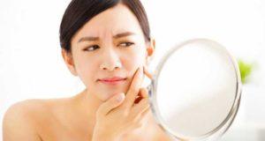 11 tratamientos caseros para eliminar las espinillas