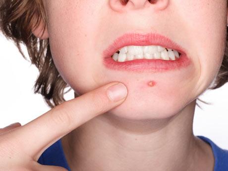 10 Maneras de quitarse los granos de la cara rápidamente