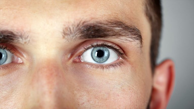 Cómo eliminar las verrugas de los ojos